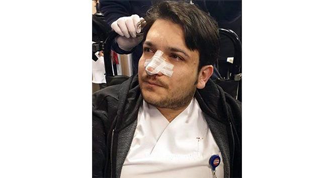 Randevusuz muayene olmak istedi, doktorun burnunu kırdı